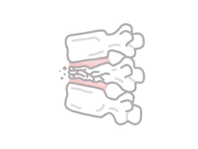 腰椎圧迫骨折